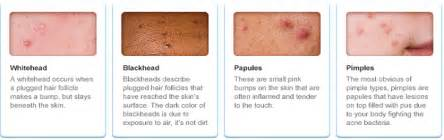 androgenic acne picture 1