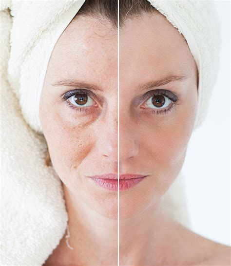 an skin tightening picture 6