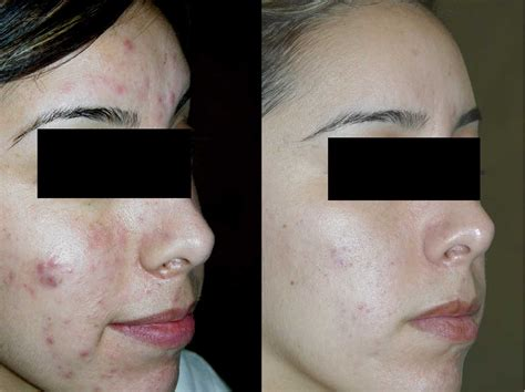 acne treatments picture 11