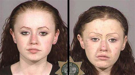 meth skin disorders picture 9
