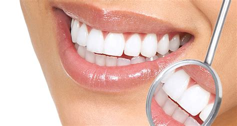 cheapest cosmetic teeth picture 14