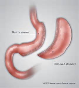 gastric intestinal surgery picture 7