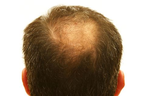 alopecia hair loss every where picture 1