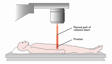Liver after prostate radiation picture 11