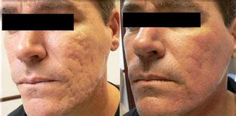 acne scar treatments in houston picture 5