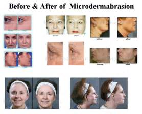dermabrasion for black skin picture 1