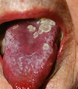 tongue herpes picture 2