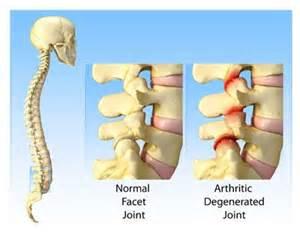 facetal joint disease picture 7