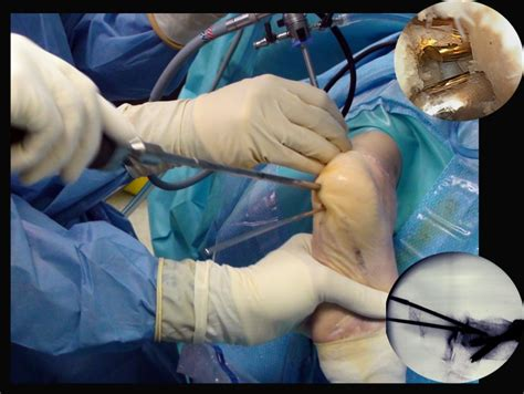 arthroscopy subtalar joint cpt coding picture 9