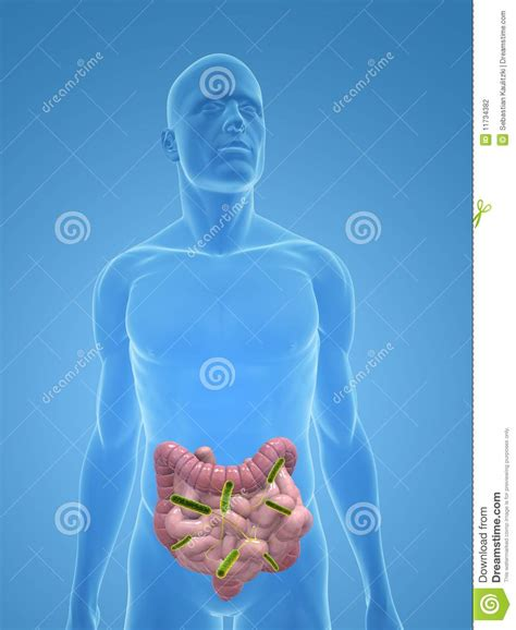 infection of colon picture 5