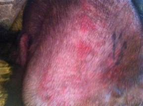 pics of skin problems in s picture 3