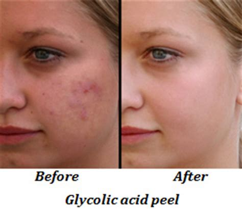 glycolic acid acne picture 7