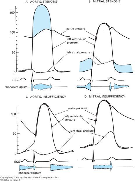 can mitral valve regurgitation may blood pressure low picture 7