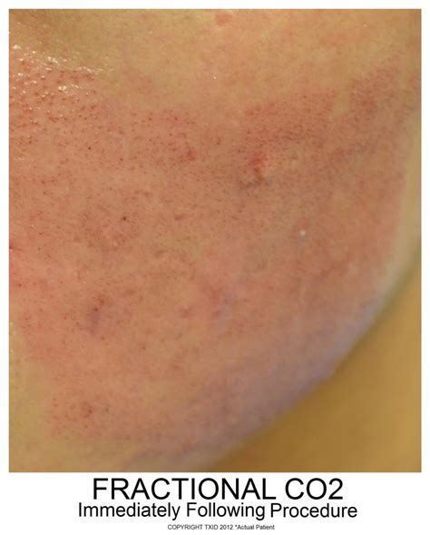 fractal skin procedure picture 10