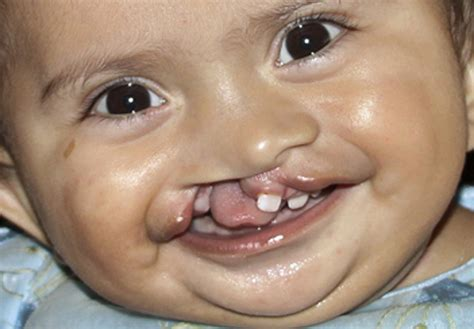 cleft lip cleft palate picture 7