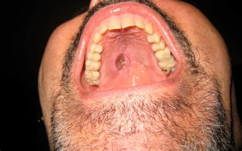 cause of pimple growths on the lips picture 15