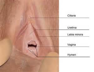 iran vaginal picture 14