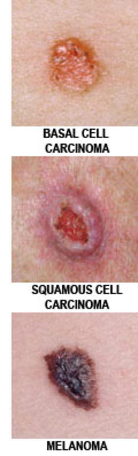 skin spot from raw en picture 9
