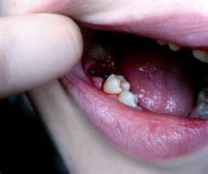 care of teeth pulling picture 7