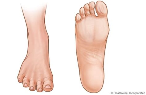diabetic foot problems picture 1