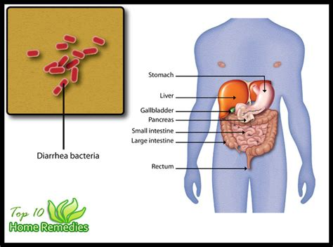 can stress cause gallbladder problems picture 15