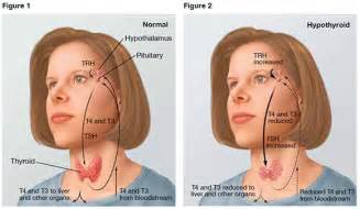 enlarged thyroid low tsh medscape -pediatric -pregnancy picture 3