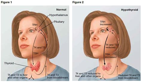 why do thyroid problems cause palpitations picture 7