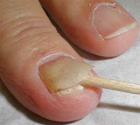 what to use for nail fungus picture 2