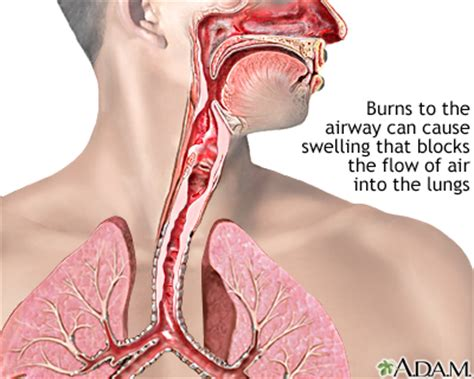 smoke inhalation picture 2
