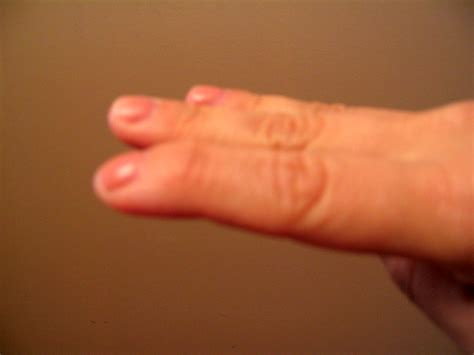 red warts on fingers picture 10