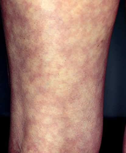 Lower cholesterol condition treatment picture 13