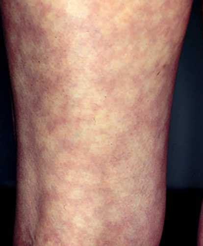 skin rash livedo picture 9