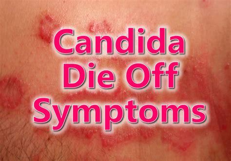 candida prostatitis picture 1