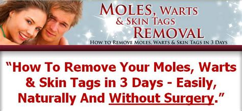 wart removal methods picture 9