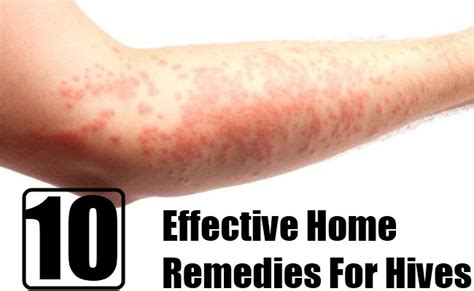remedies for hives picture 2