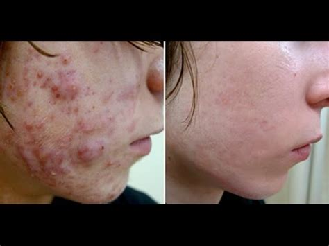 steriod acne picture 2