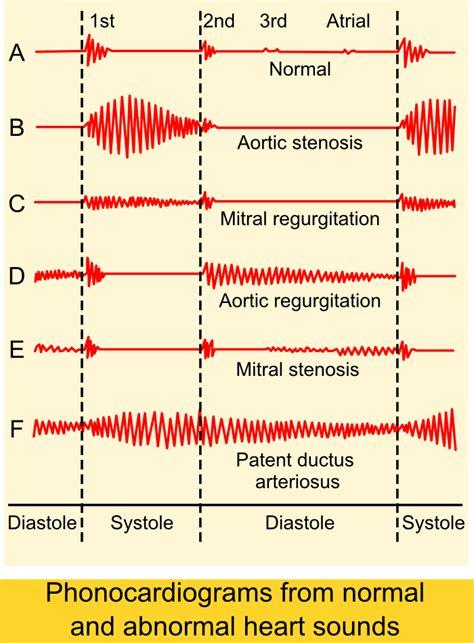 diagnosing small el obstruction picture 5