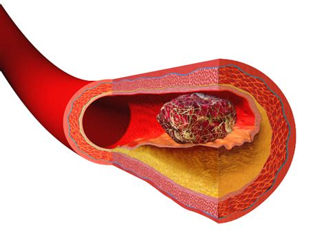 Cholesterol and plaque picture 5