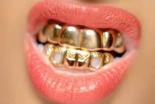 finance me gold teeth picture 3