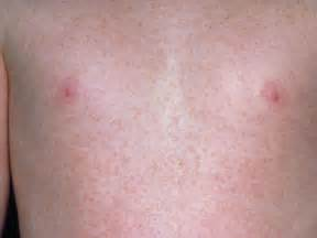 skin rashes in babies picture 17