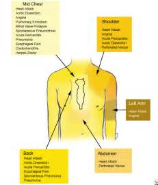 chest pain relief picture 5