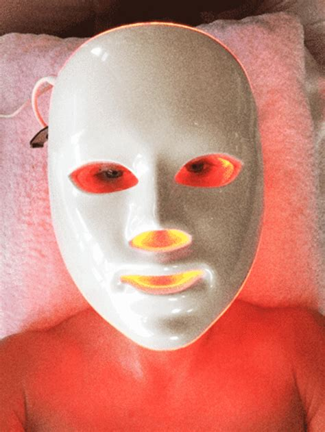 microdermabrasion for acne scars picture 10