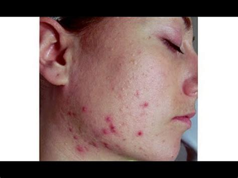 dry skin acne picture 5