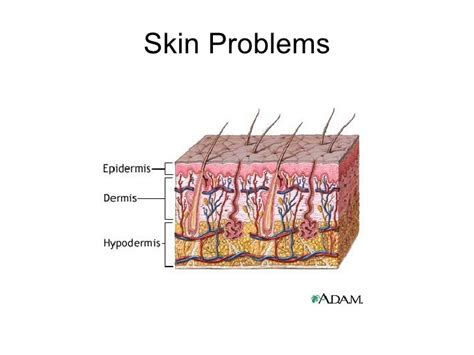 disorders and treaments for skin problems picture 2