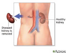 pain in bladder drip in penis picture 12