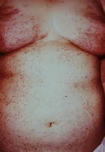 skin rashes in humans picture 5
