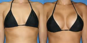 breast augmentation before and after picture 7