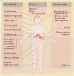 chronic liver disease skin disorder name picture 5