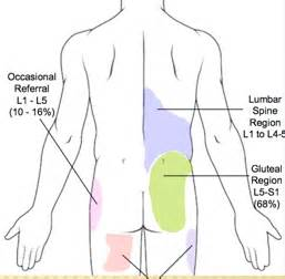 lumbar facet joint diseases picture 11