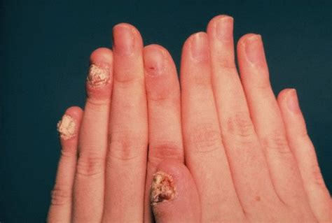 acrylic nail fungus symptoms picture 2